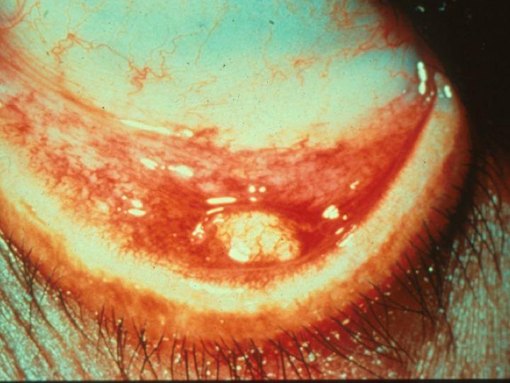 spot on eyelids